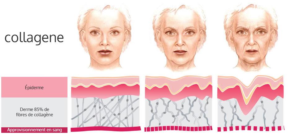 rajeunissement-collagene-multisoinssophie
