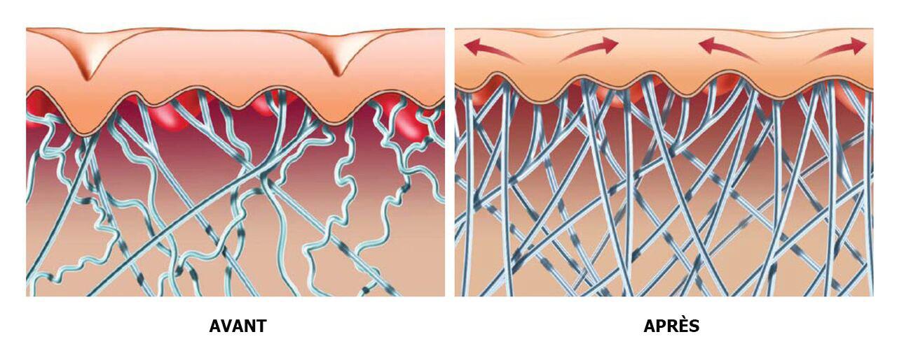 stucture-peau-multisoinssophie