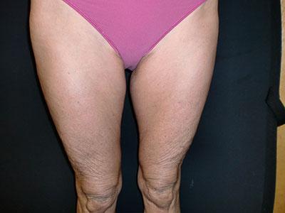 raffermissement-apres-jambes-multisoinssophie.png