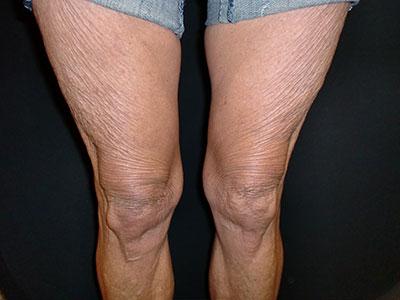 raffermissement-avant-jambes-multisoinssophie.png